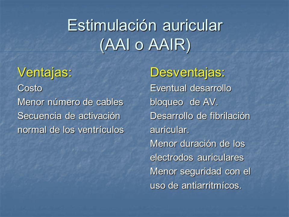 Estimulación auricular (AAI o AAIR)