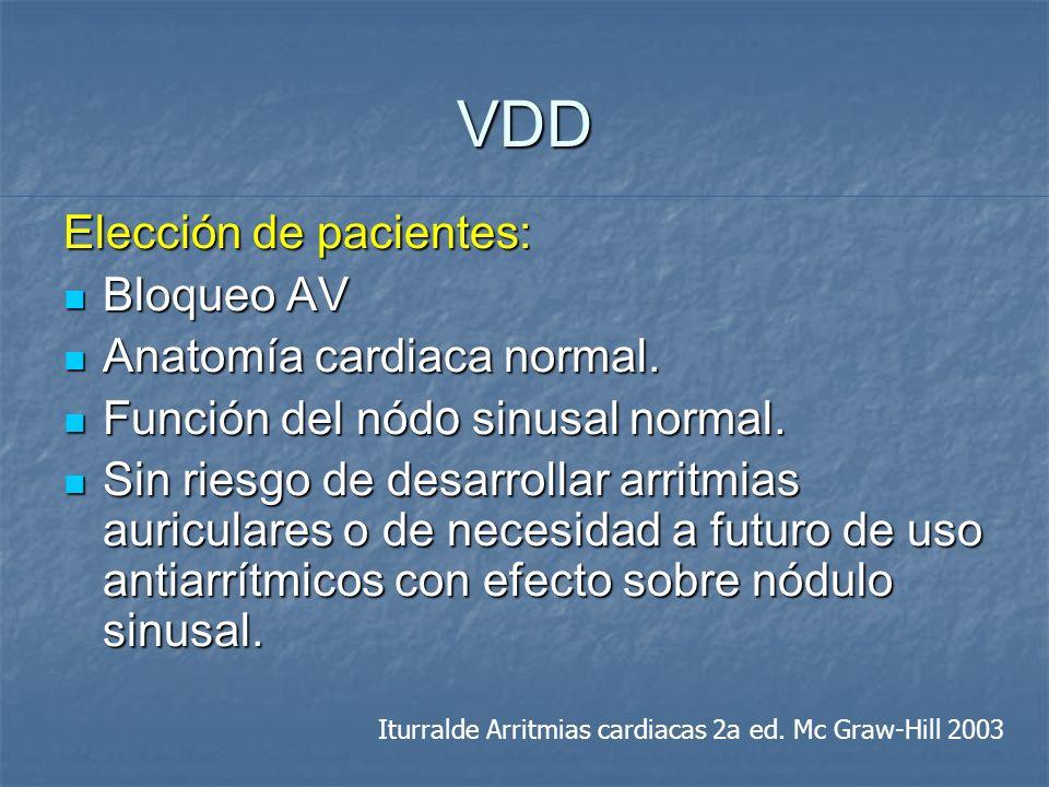 VDD Elección de pacientes: Bloqueo AV Anatomía cardiaca normal.
