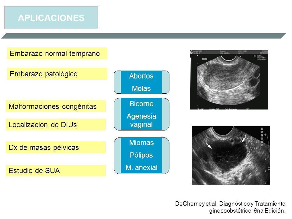 APLICACIONES Embarazo normal temprano Embarazo patológico