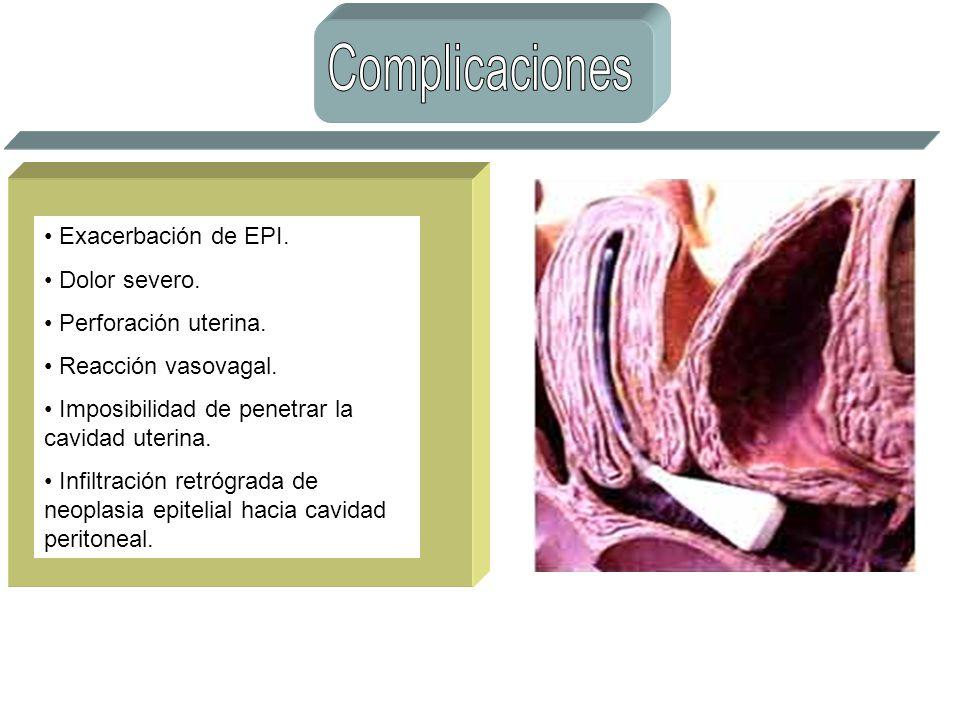 Complicaciones Exacerbación de EPI. Dolor severo. Perforación uterina.