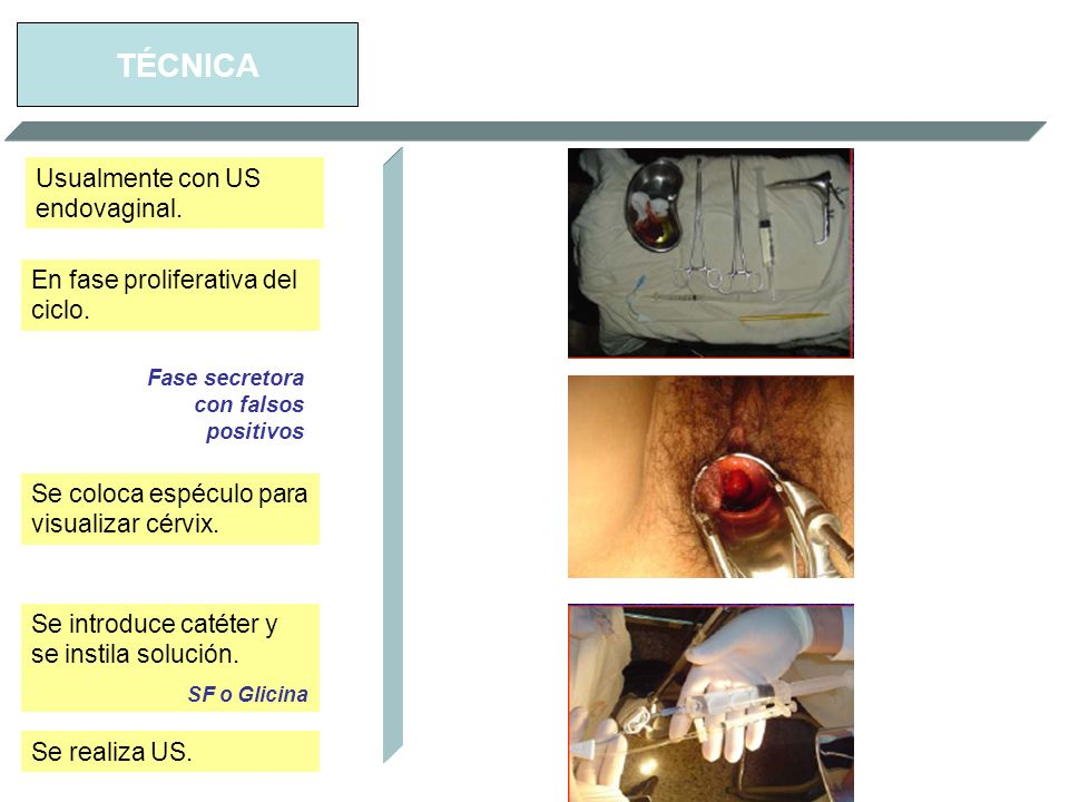 TÉCNICA Usualmente con US endovaginal.