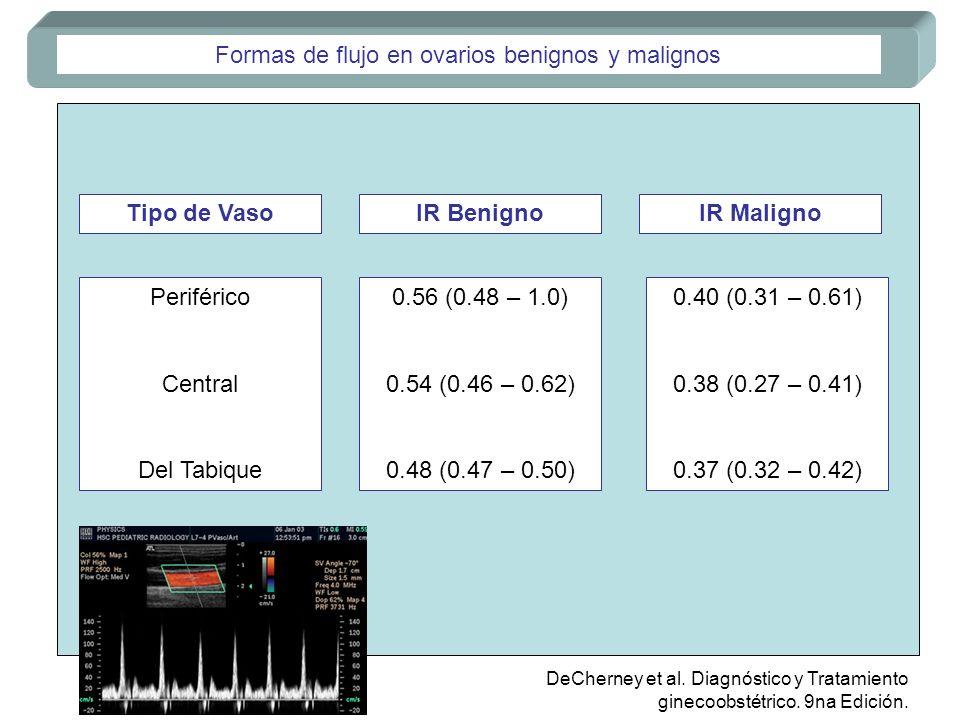 Formas de flujo en ovarios benignos y malignos