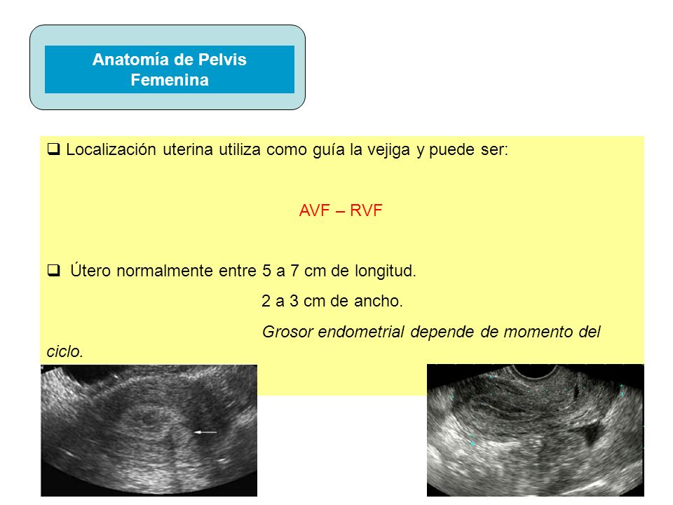 Anatomía de Pelvis Femenina
