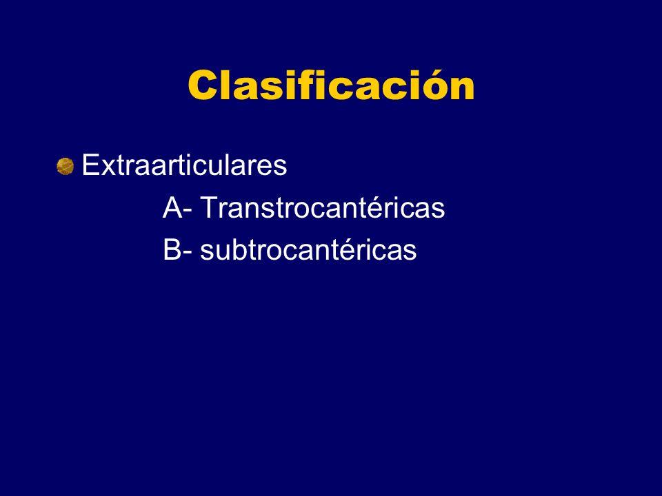 Clasificación Extraarticulares A- Transtrocantéricas