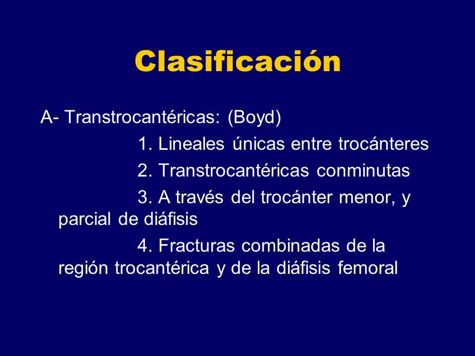 Clasificación A- Transtrocantéricas: (Boyd)