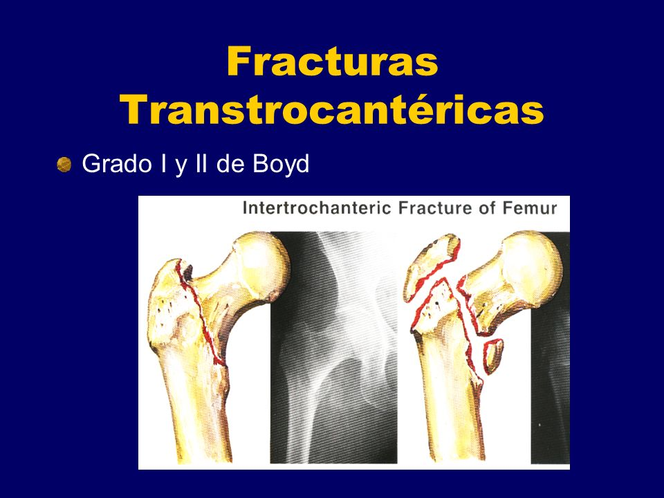 Fracturas Transtrocantéricas