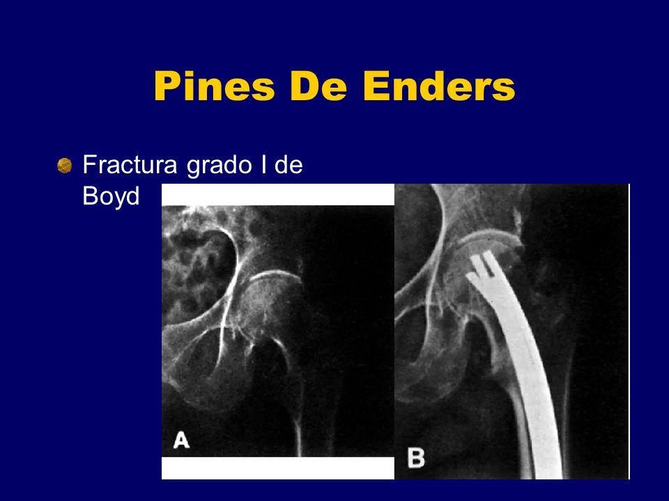 Pines De Enders Fractura grado I de Boyd
