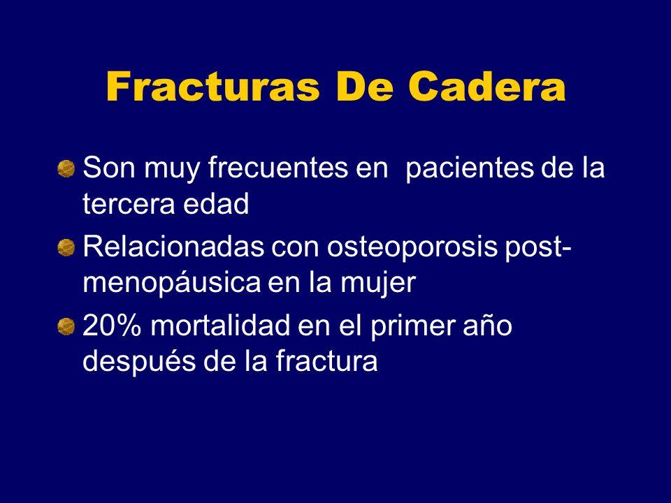 Fracturas De Cadera Son muy frecuentes en pacientes de la tercera edad