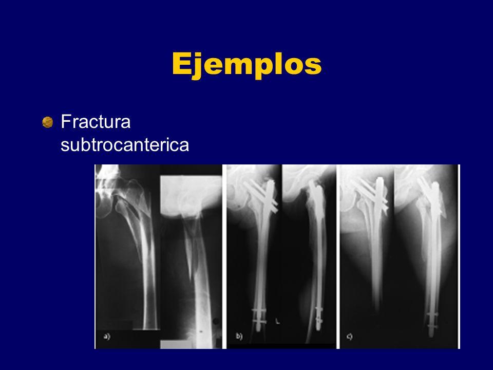 Ejemplos Fractura subtrocanterica