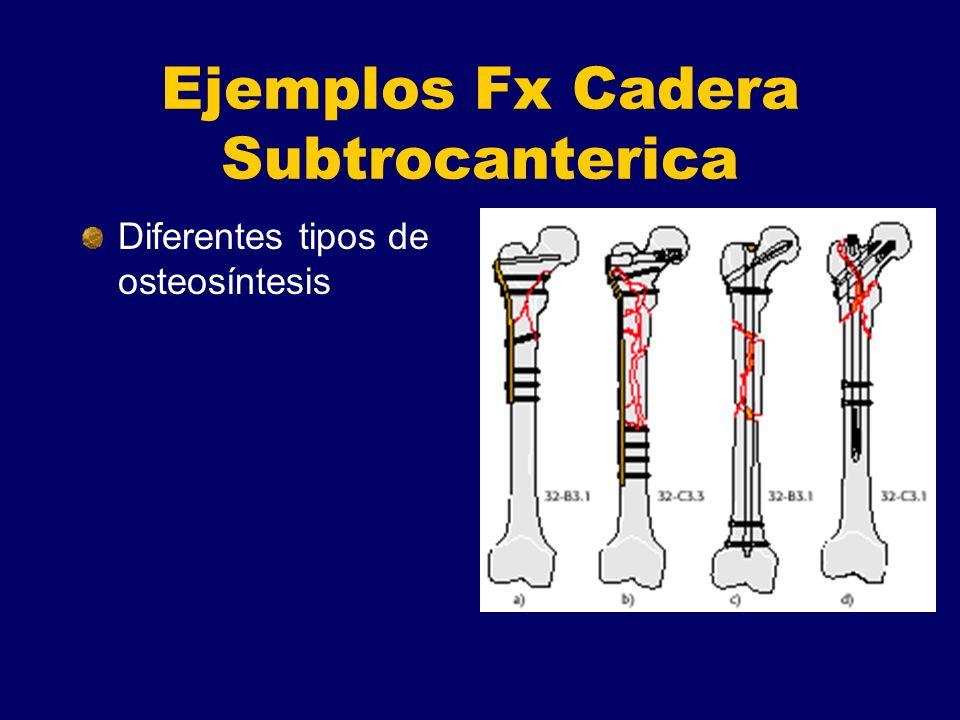 Ejemplos Fx Cadera Subtrocanterica