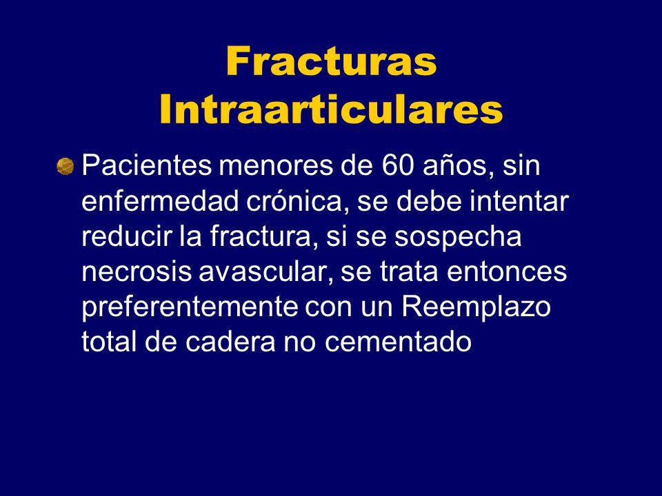 Fracturas Intraarticulares