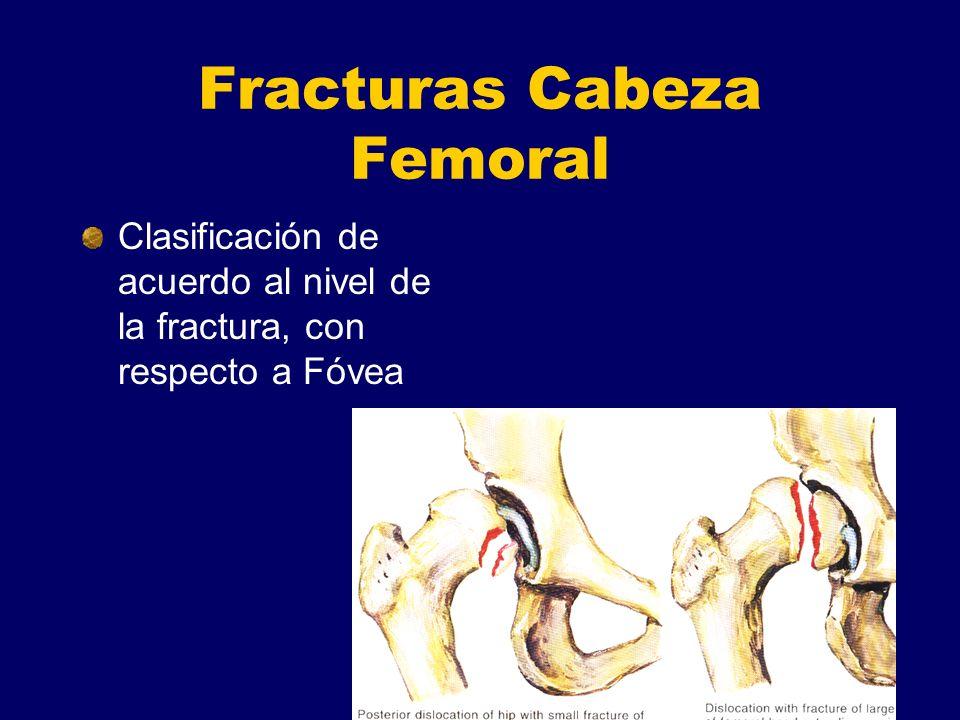 Fracturas Cabeza Femoral