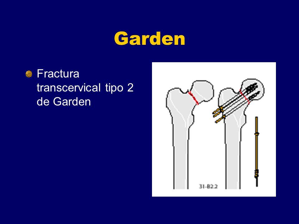 Garden Fractura transcervical tipo 2 de Garden