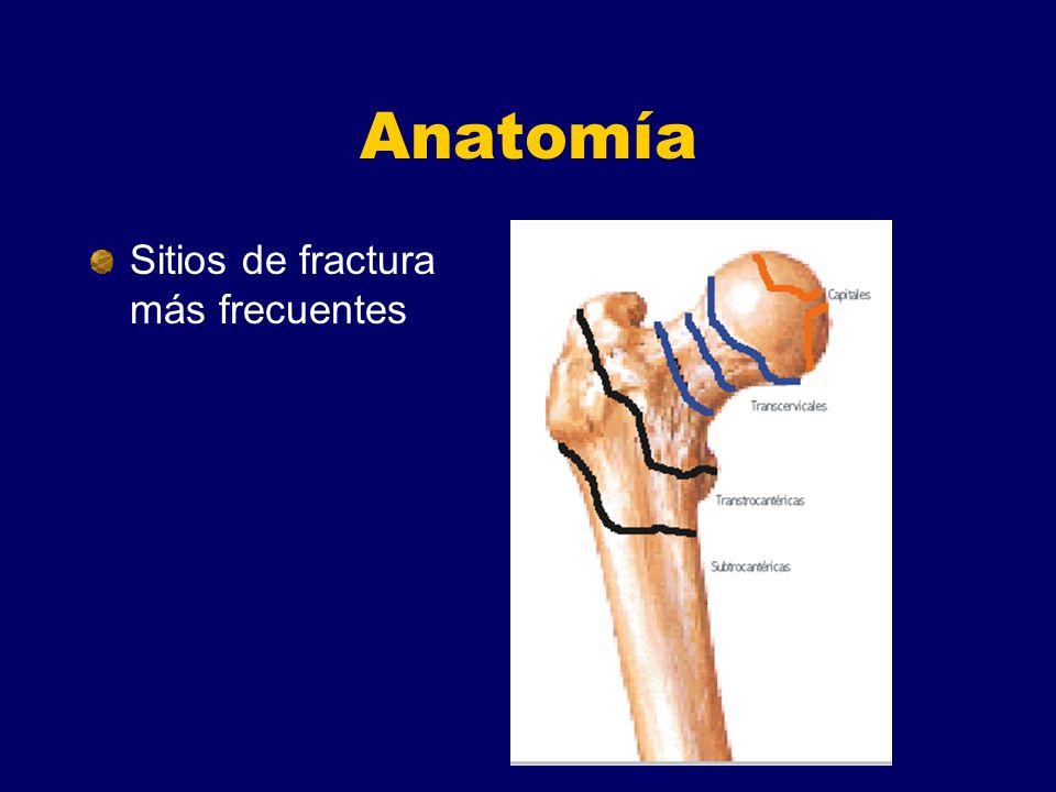 Anatomía Sitios de fractura más frecuentes