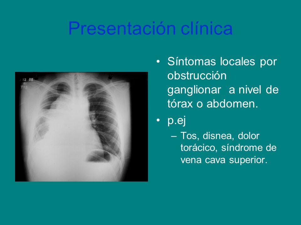 Presentación clínica Síntomas locales por obstrucción ganglionar a nivel de tórax o abdomen. p.ej.