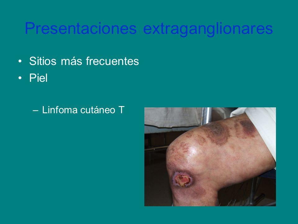 Presentaciones extraganglionares