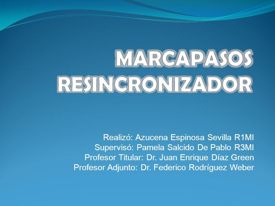 MARCAPASOS RESINCRONIZADOR