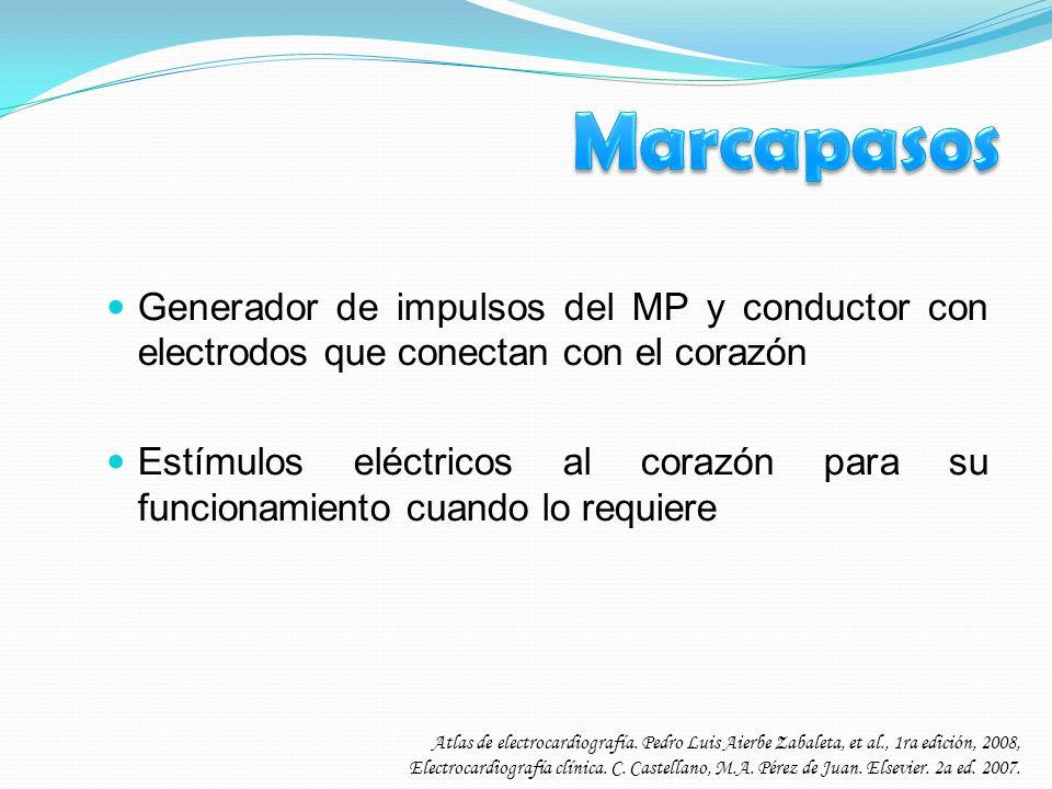 Marcapasos Generador de impulsos del MP y conductor con electrodos que conectan con el corazón.