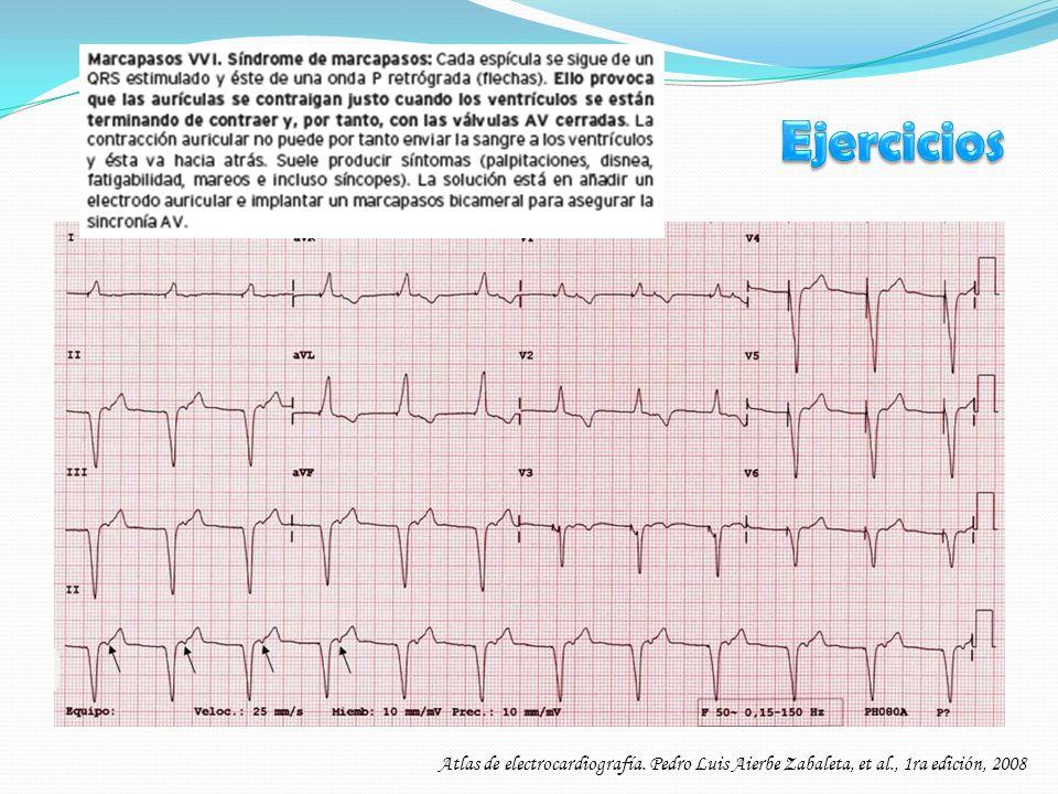 Ejercicios Atlas de electrocardiografía. Pedro Luis Aierbe Zabaleta, et al., 1ra edición, 2008