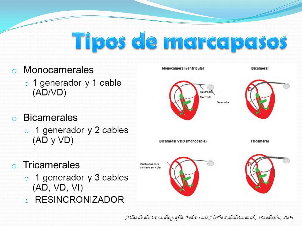 Tipos de marcapasos Monocamerales Bicamerales Tricamerales