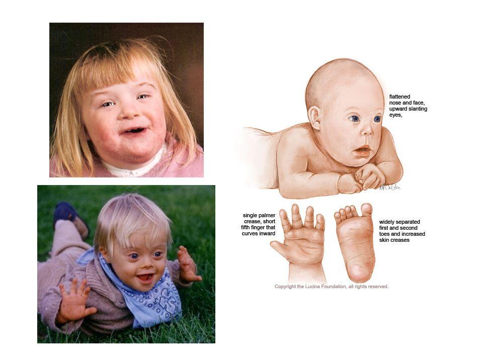 Determinar la etioilogia de un defecto congenito es compleja y requiere una valoracion detallada, muchas vecces exiten interacciones entre factores ambientales y geneticos en un mismo indiv.