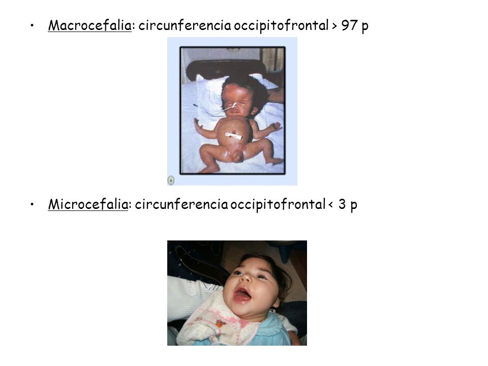 Macrocefalia: circunferencia occipitofrontal > 97 p