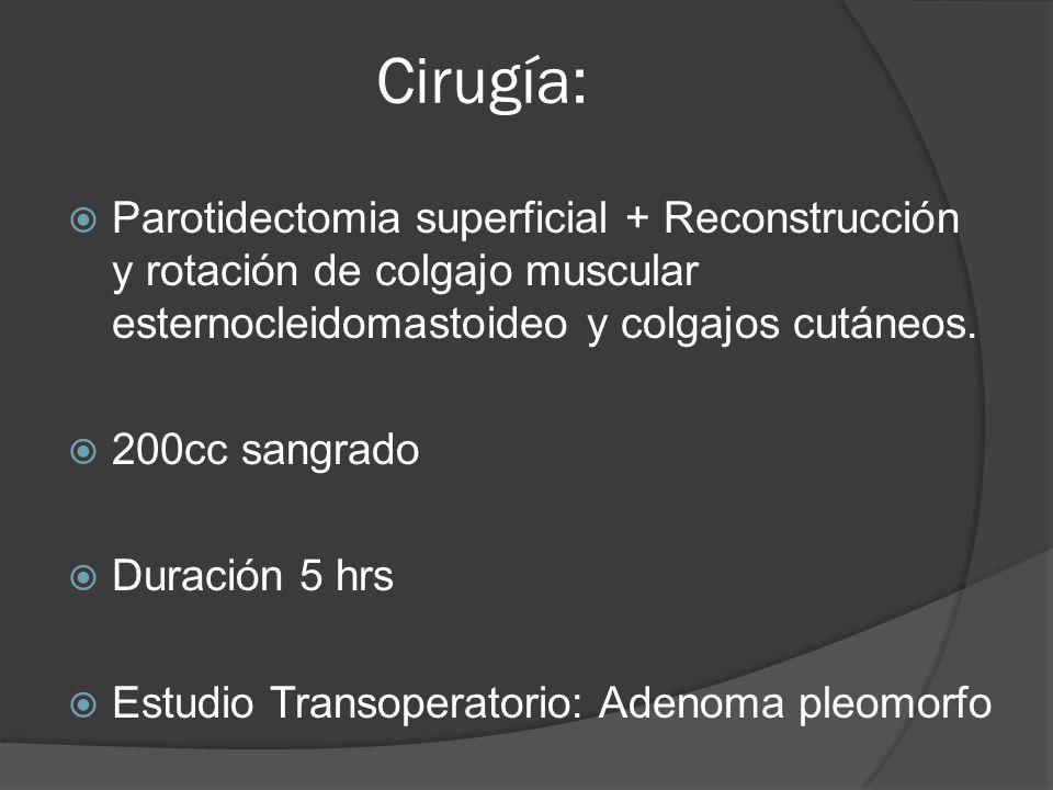 Cirugía: Parotidectomia superficial + Reconstrucción y rotación de colgajo muscular esternocleidomastoideo y colgajos cutáneos.
