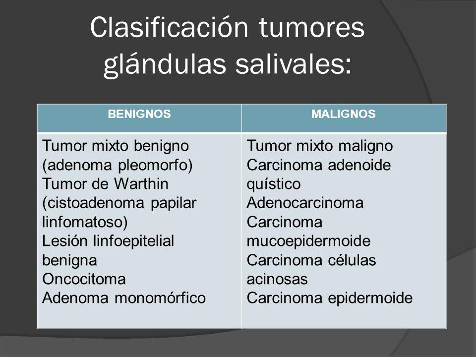 Clasificación tumores glándulas salivales: