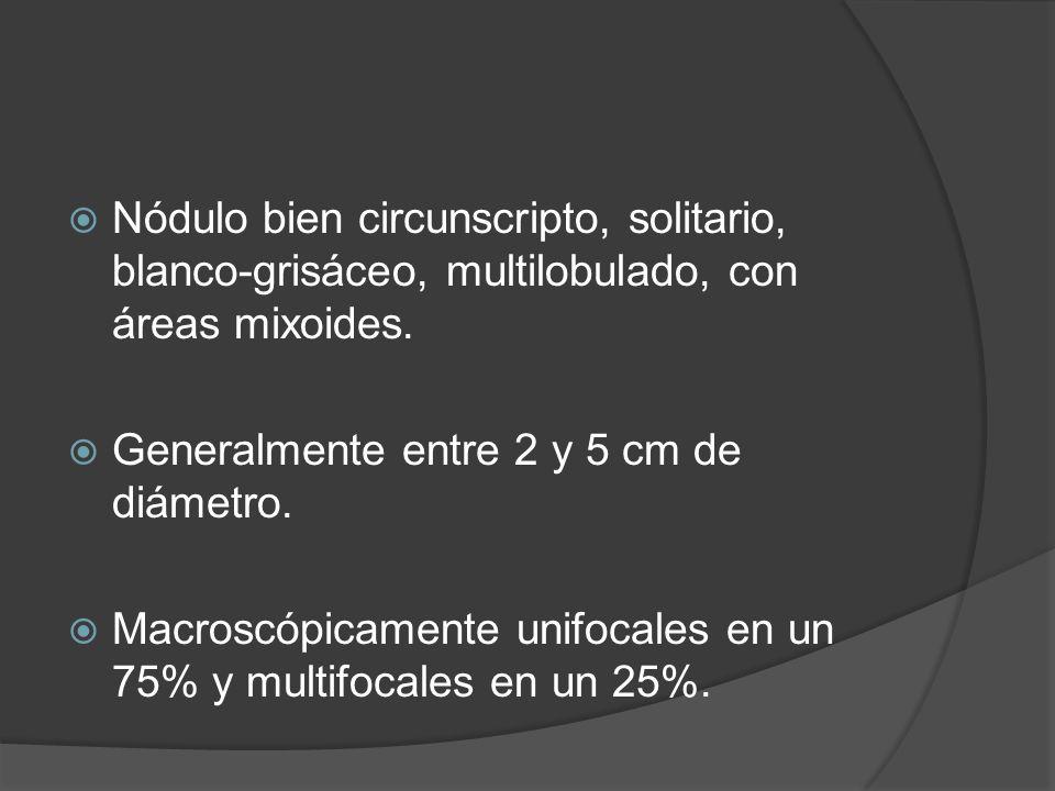 Nódulo bien circunscripto, solitario, blanco-grisáceo, multilobulado, con áreas mixoides.