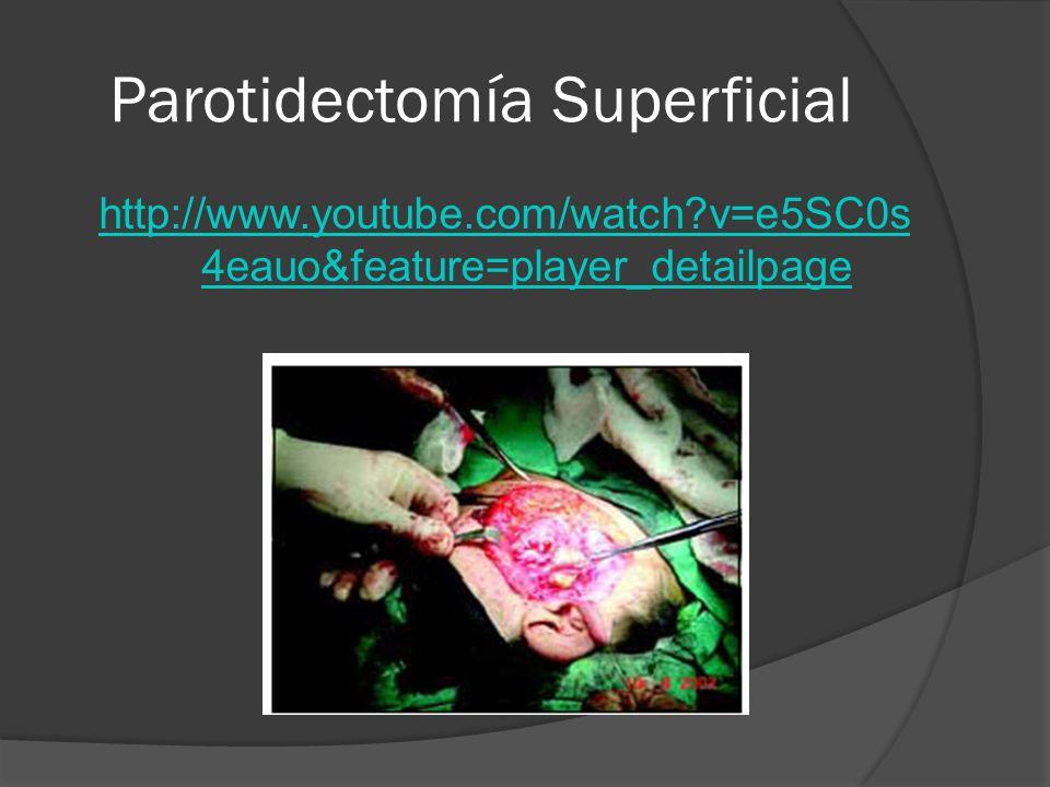 Parotidectomía Superficial