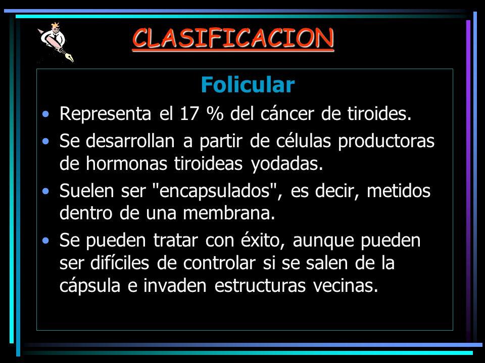 CLASIFICACION Folicular Representa el 17 % del cáncer de tiroides.