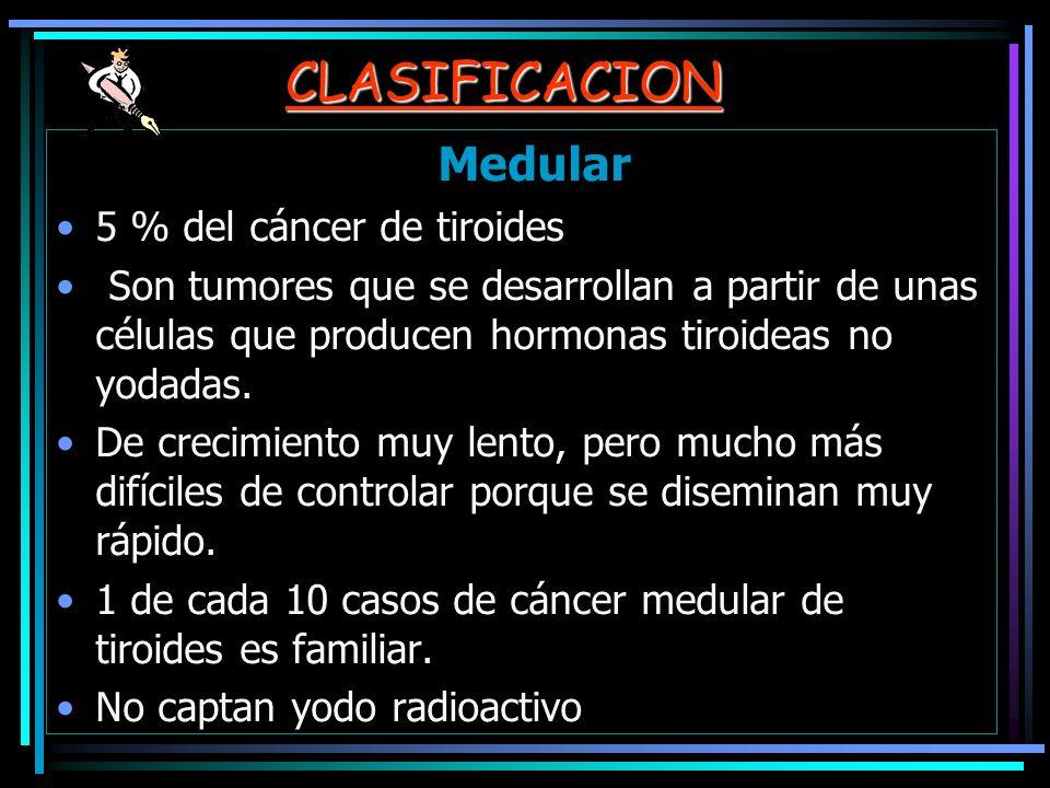 CLASIFICACION Medular 5 % del cáncer de tiroides