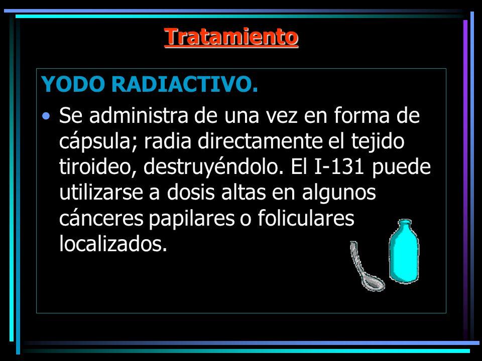 Tratamiento YODO RADIACTIVO.