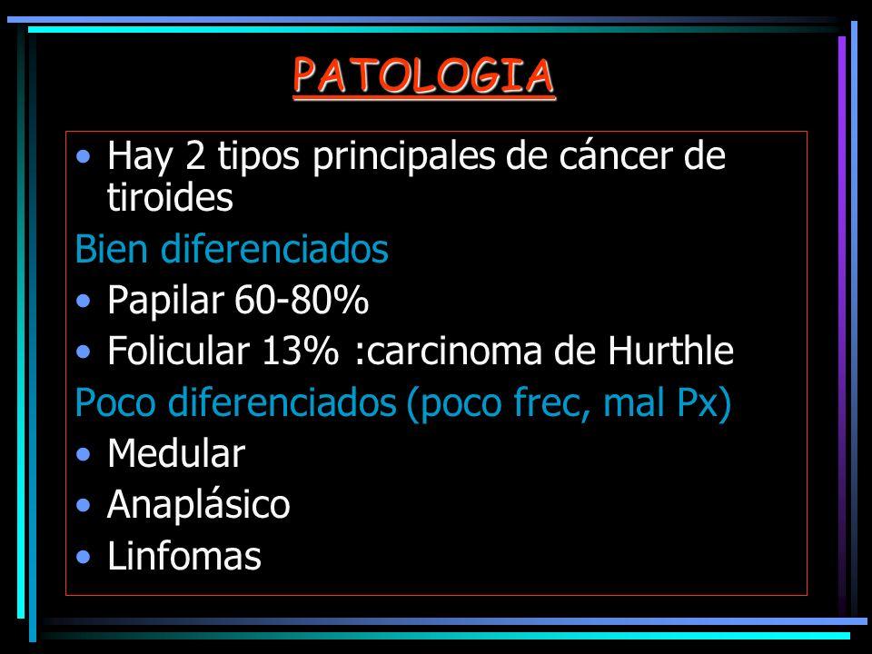 PATOLOGIA Hay 2 tipos principales de cáncer de tiroides. Bien diferenciados. Papilar 60-80% Folicular 13% :carcinoma de Hurthle.