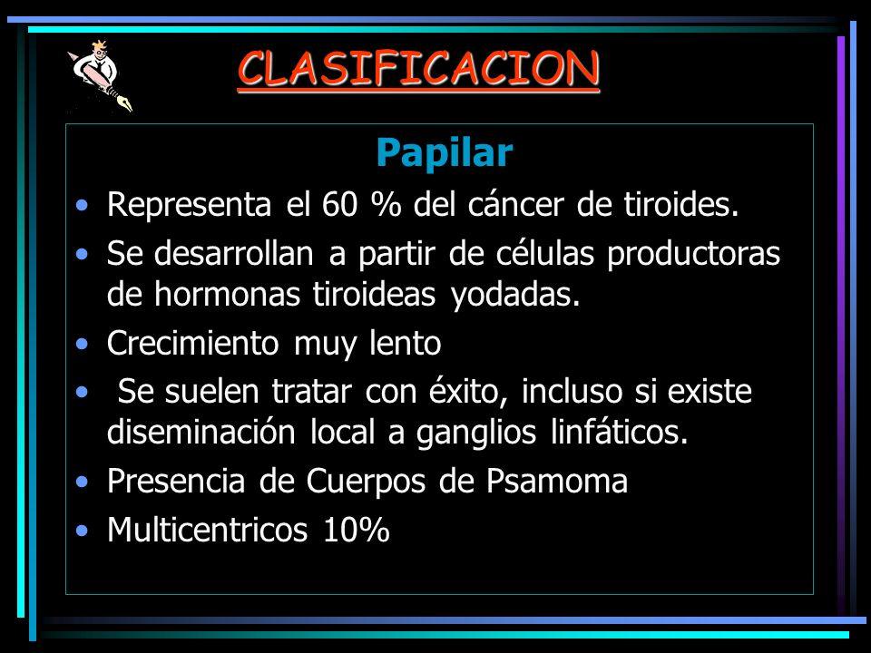 CLASIFICACION Papilar Representa el 60 % del cáncer de tiroides.