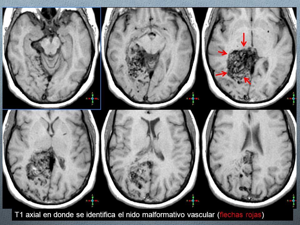 T1 axial en donde se identifica el nido malformativo vascular (flechas rojas)