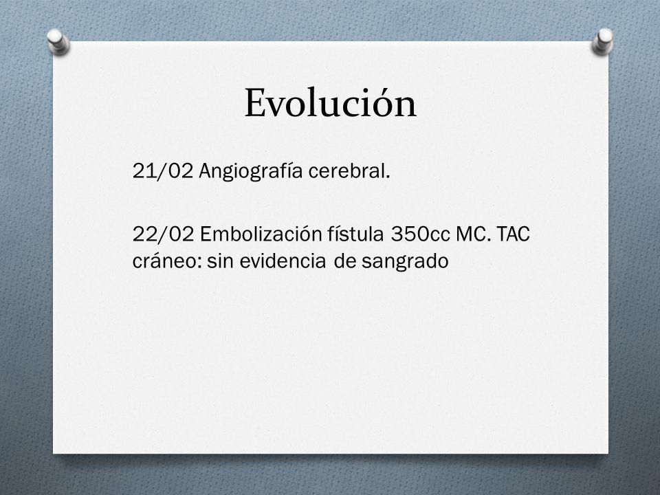 Evolución21/02 Angiografía cerebral.22/02 Embolización fístula 350cc MC.