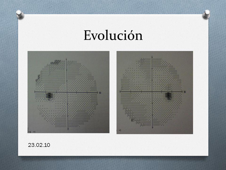 Evolución 23.02.10