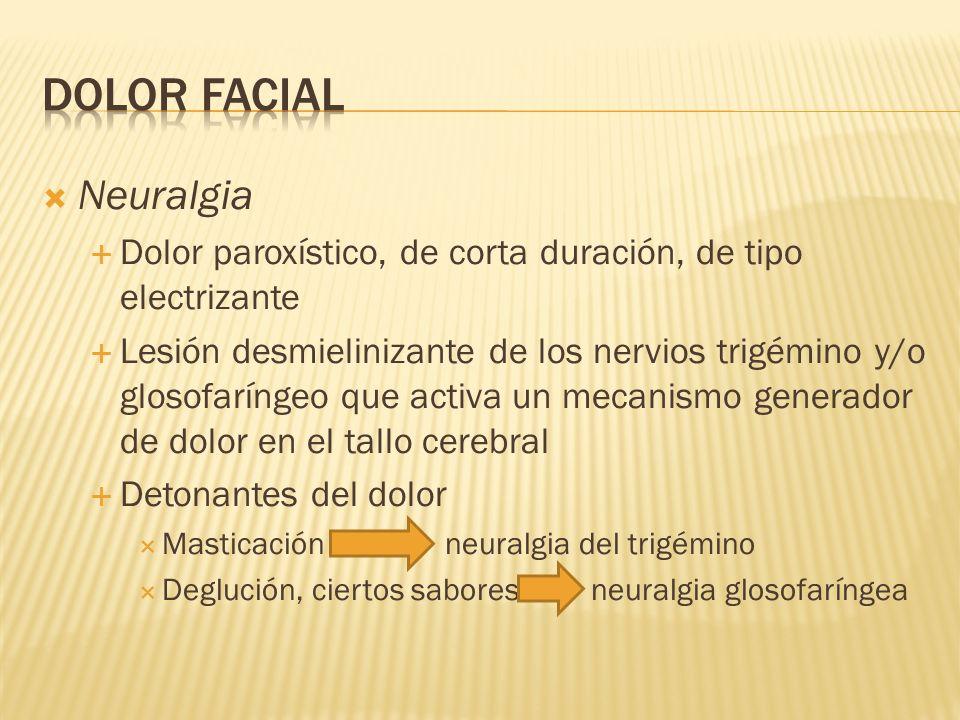 DOLOR FACIAL Neuralgia