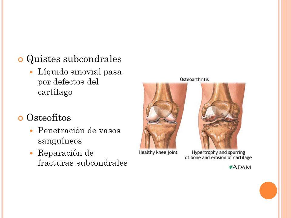 Quistes subcondrales Osteofitos