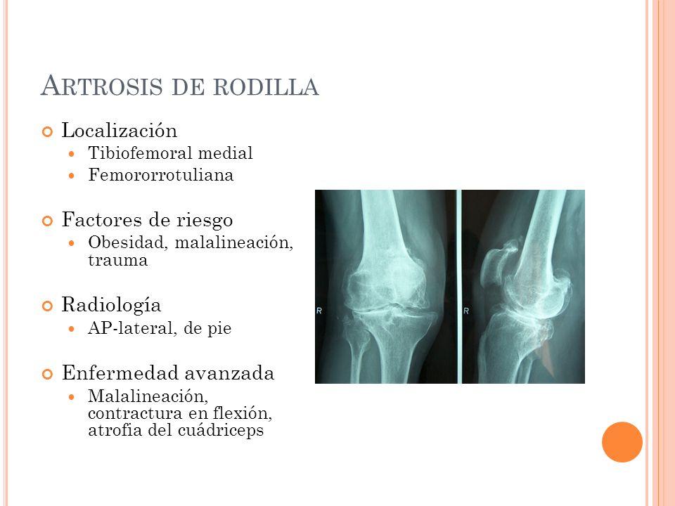 Artrosis de rodilla Localización Factores de riesgo Radiología