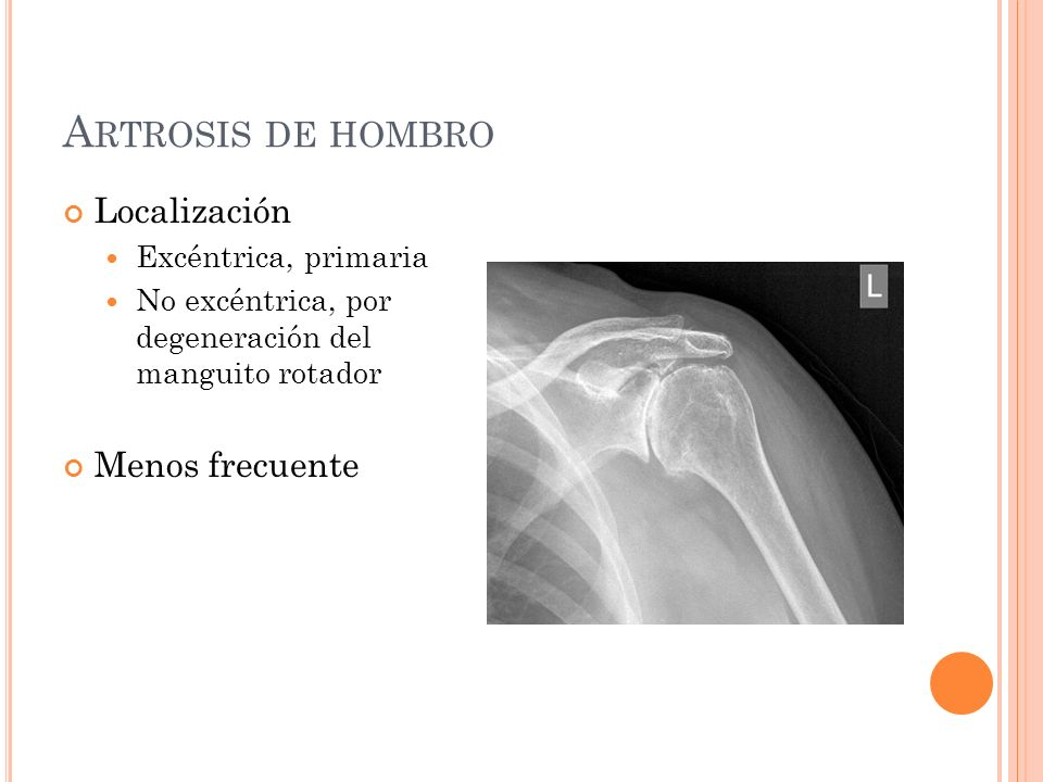 Artrosis de hombro Localización Menos frecuente Excéntrica, primaria