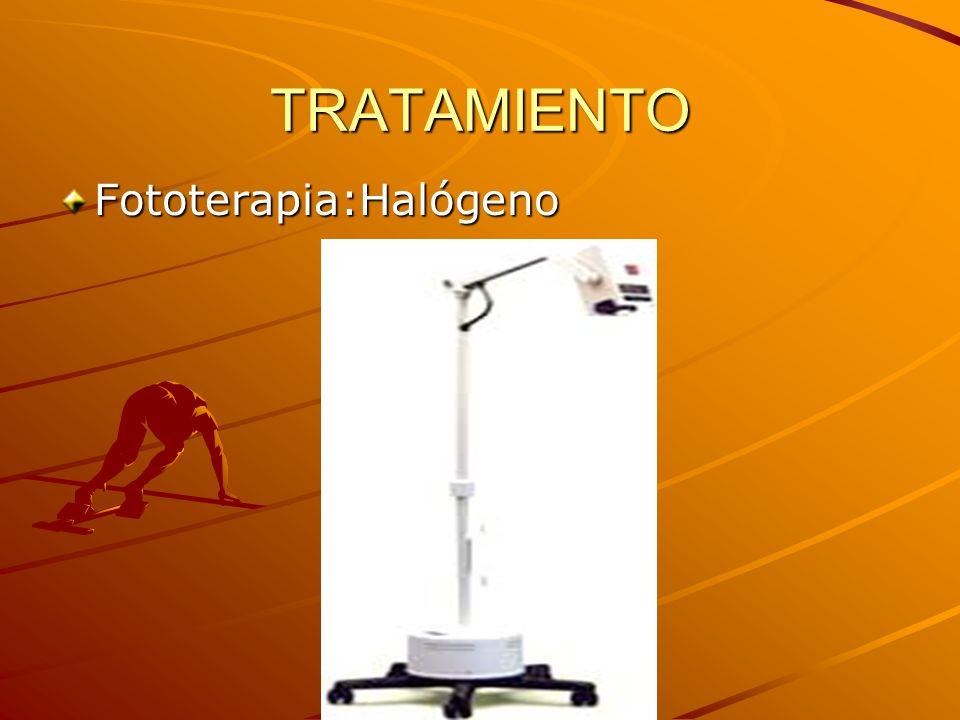 TRATAMIENTO Fototerapia:Halógeno