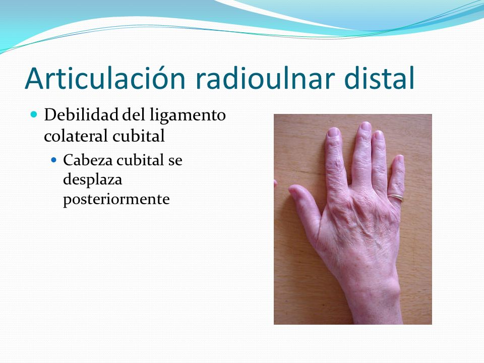 Articulación radioulnar distal