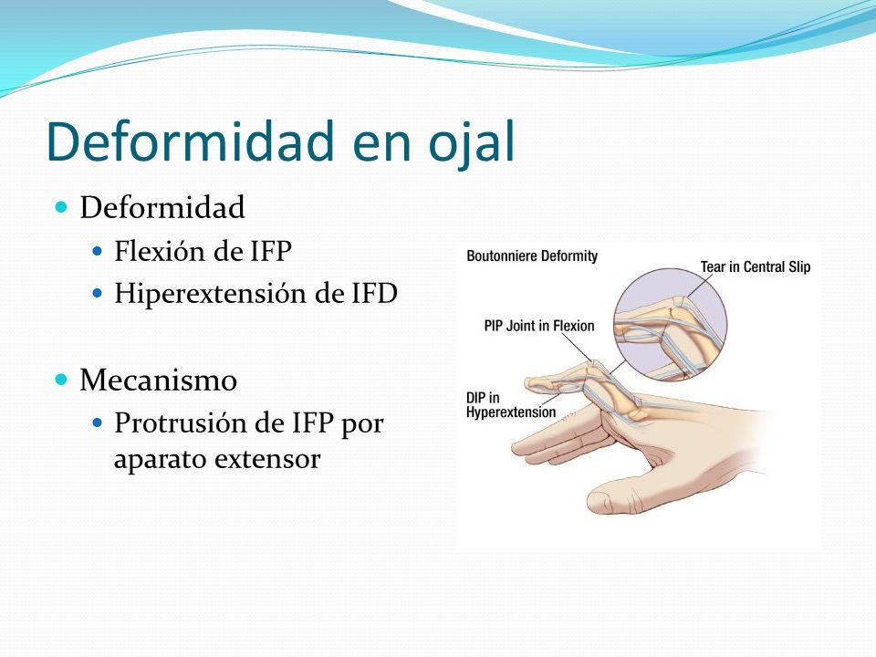 Deformidad en ojal Deformidad Mecanismo Flexión de IFP