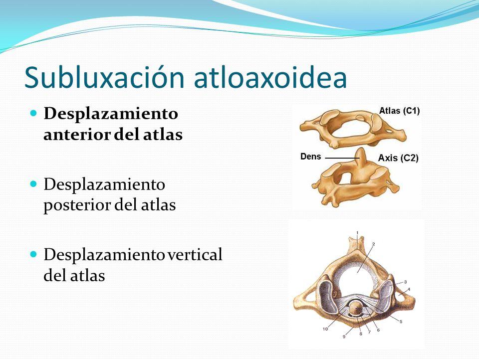 Subluxación atloaxoidea