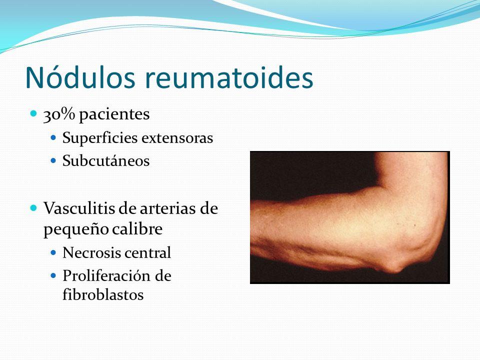 Nódulos reumatoides 30% pacientes