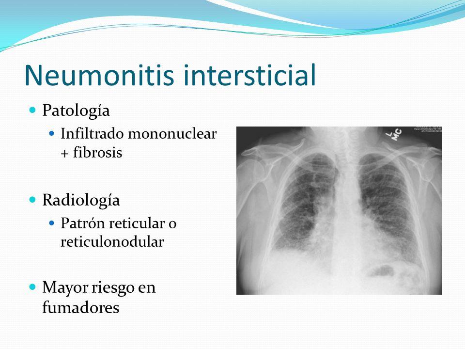 Neumonitis intersticial