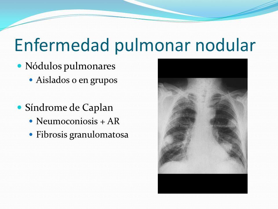 Enfermedad pulmonar nodular