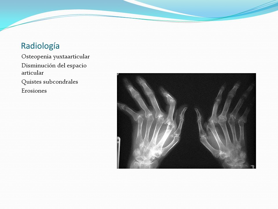 Radiología Osteopenia yuxtaarticular Disminución del espacio articular